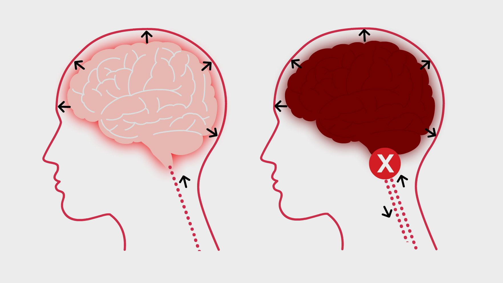 La mort cérébrale (encéphalique)