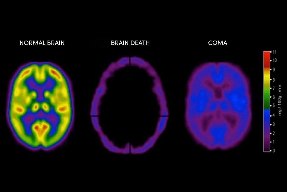 Blog Brain Death